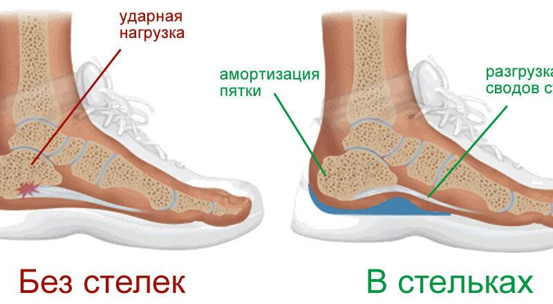 kak-podobrat-obuv-pod-ortopedicheskie-stelki-s-kakoj-obuvyu-nosit-stelki-2