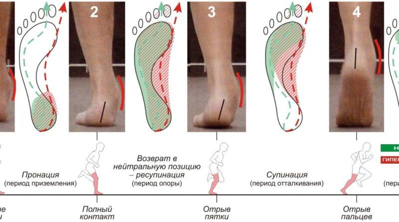 pronatsiya-stopy-kak-opredelit-kak-vybrat-krossovki-2